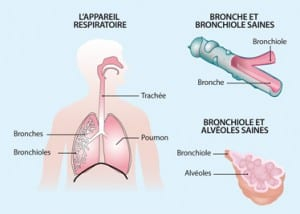 soigner juin bronchite